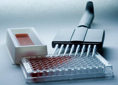 人抗角蛋白抗体(AKA)ELISA试剂盒